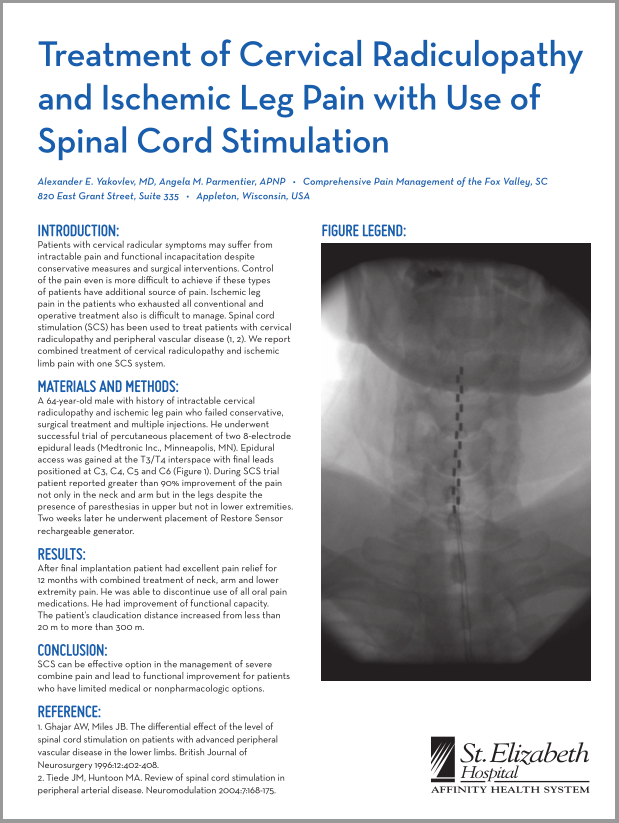 Treatment of Cervical Radiculopathy and Ischemic Leg Pain with Use of Spinal Cord Stimulation.PNG